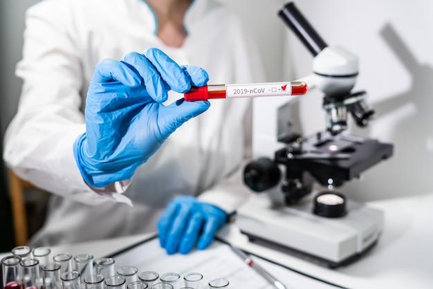Um médico tem na mão um tubo de ensaio com um exame de sangue positivo para o novoconcept - a ameaça do novo vírus chinês 2019-ncov coronavírus da china.