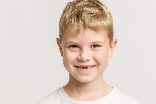Um menino sem dentes anteriores sorrindo