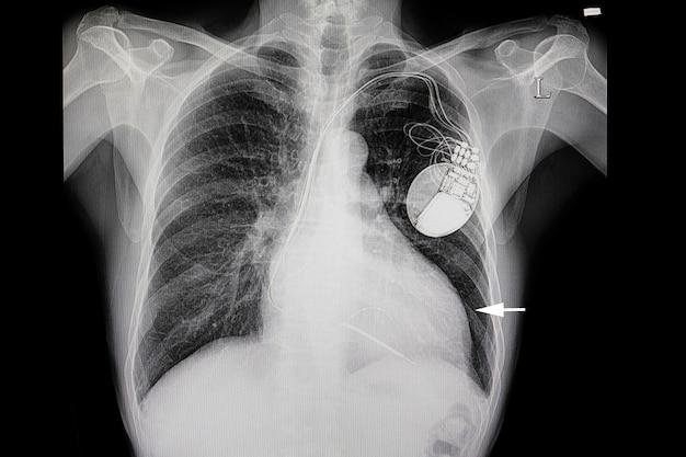 Um paciente com aumento do coração e um marcapasso cardíaco