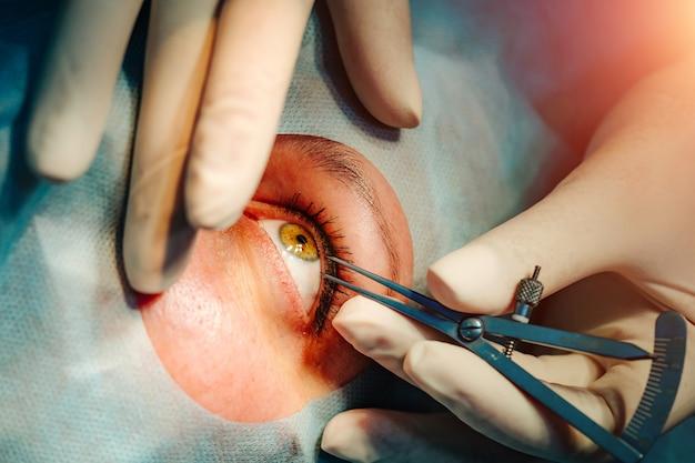 Um paciente e um cirurgião na sala de cirurgia durante uma cirurgia oftálmica