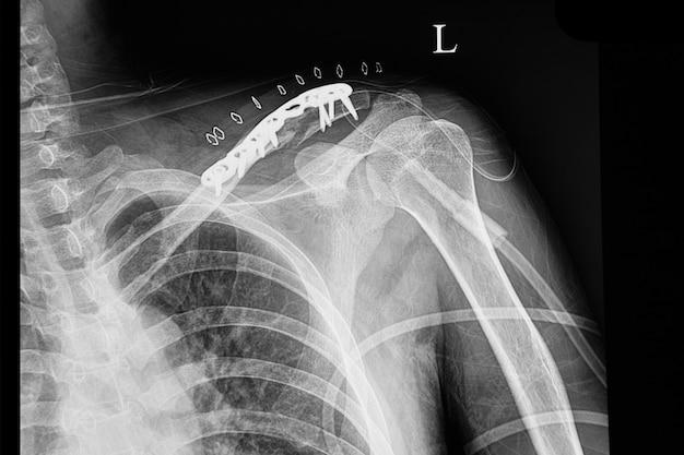 Um raio x de filme escuro de um paciente com clavícula fraturada