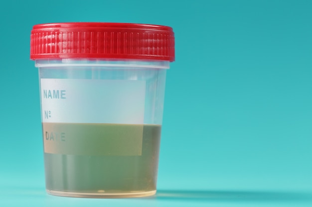 Um recipiente para biomateriais com análise de urina