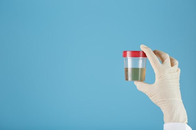 Um recipiente para biomaterial com análise de urina na mão de um médico em uma luva de borracha branca sobre um azul.
