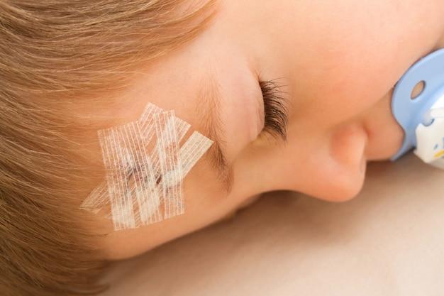 Uma criança com um curativo na testa costurada em um acidente