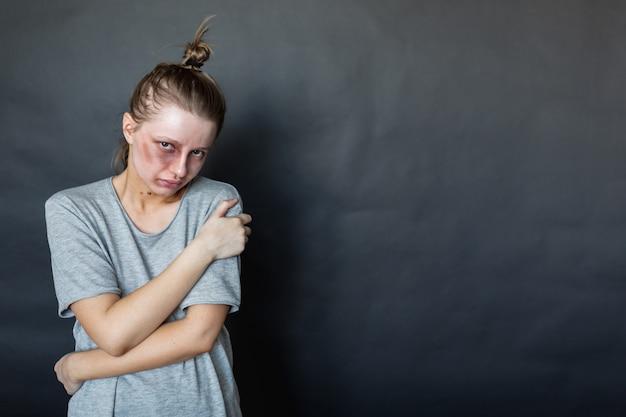 Uma garota com um olho roxo depois de uma briga com o marido e o namorado fica em uma parede escura, se abraça e fica triste. violência doméstica. agressão do marido