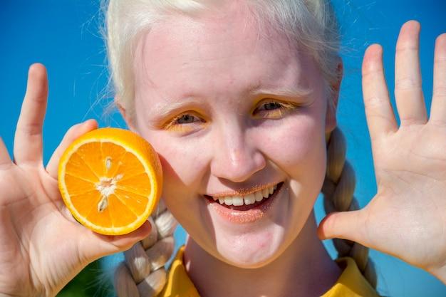 Uma jovem albina com uma blusa amarela contra um céu azul.