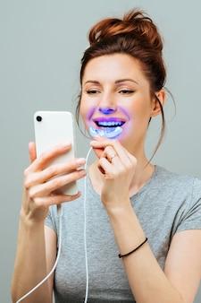 Uma jovem está envolvida em um complexo de clareamento dental caseiro para clareamento dental com lâmpada ultravioleta