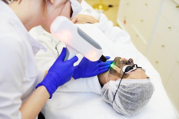 Uma jovem mulher sobre o procedimento de peeling de carbono na superfície da sala de cosmetologia moderna. cosmetologia a laser