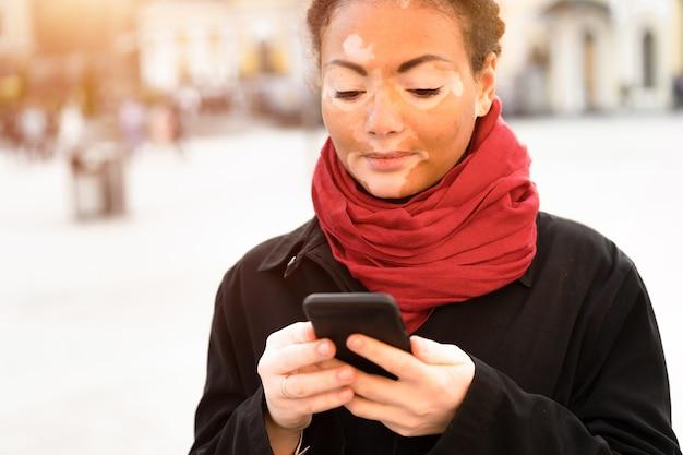 Uma linda jovem de etnia africana com vitiligo em pé na rua da cidade de primavera quente vestido casaco preto