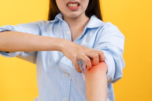 Uma mulher coçando o braço