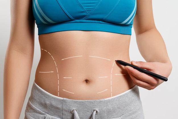 Uma mulher mostra uma linha pontilhada na zona de lipoaspiração do corpo
