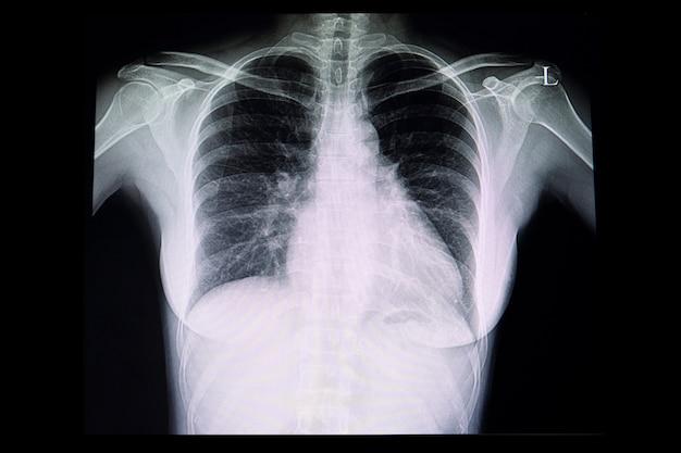 Uma radiografia de tórax de um paciente com cardiomegalia
