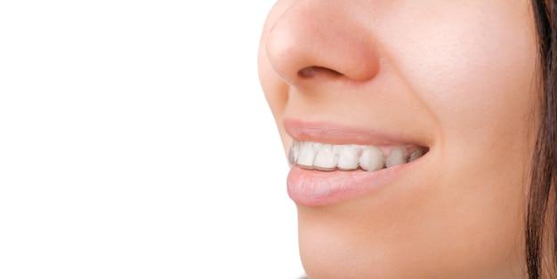 Uma vista lateral do sorriso de uma mulher em alinhadores transparentes