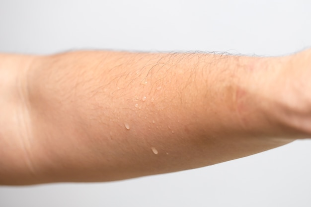 Umidade suor pele, braço com gota de água molhada após o esporte.