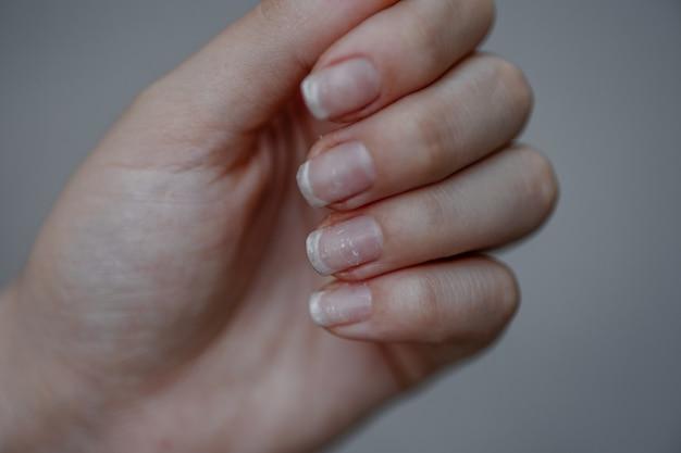 Unhas danificadas após o uso de goma laca problemas de unhas e cutículas conceito de cuidado das mãos manicure feia