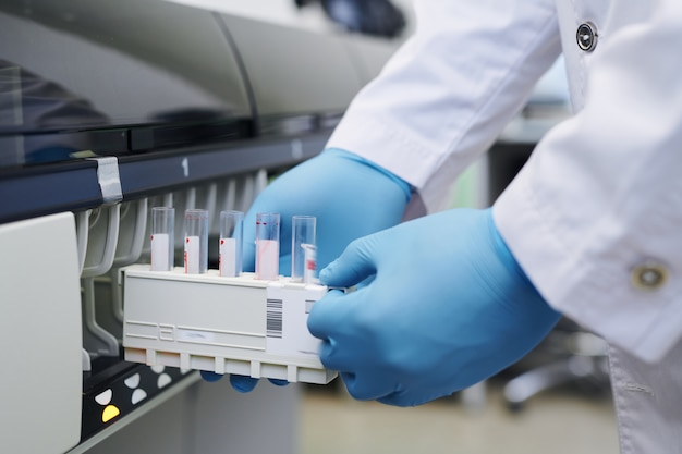 Usando máquina de laboratório para pesquisa de sangue