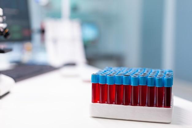 Vacutainer médico com amostra de sangue em pé sobre a mesa durante o exame farmacêutico