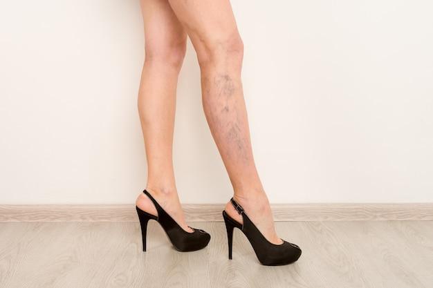 Varizes nas pernas finas de uma mulher. flebologia