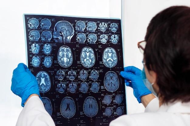 Varredura de ressonância magnética do cérebro por tomografia computadorizada nas mãos do médico.