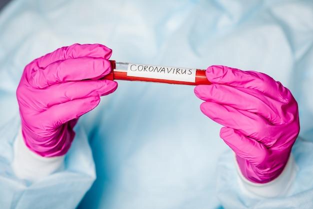 Vírus corona epidêmico. doutor, segurando o exame de sangue, resultado positivo, disseminando rapidamente o coronavírus, china. tubo com amostra de sangue para 2019-ncov.
