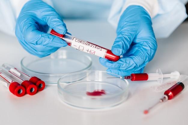Vírus corona epidêmico. médico segurando um exame de sangue, resultado positivo, espalhando rapidamente coronavírus, china. tubo, amostra de sangue para 2019-ncov.