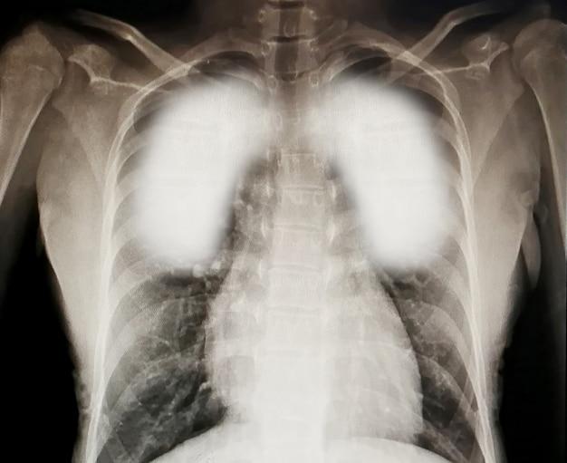 Vírus destrói pulmões humanos inflamados uma radiografia. conceito de coronavírus
