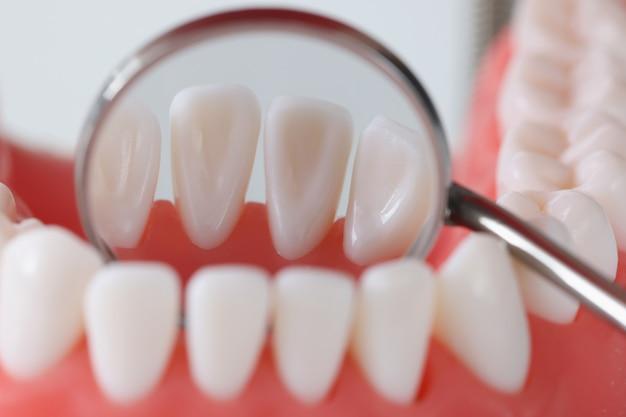 Visão dos dentes por dentro com espelho dentário conceito de tratamento odontológico terapêutico