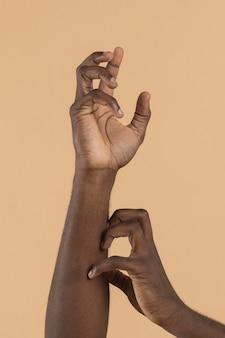 Vista frontal da mão coçando a outra mão