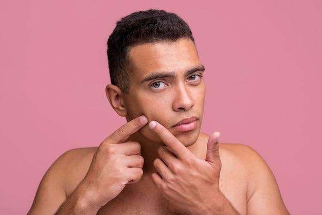Vista frontal de um homem tentando estourar uma espinha no rosto
