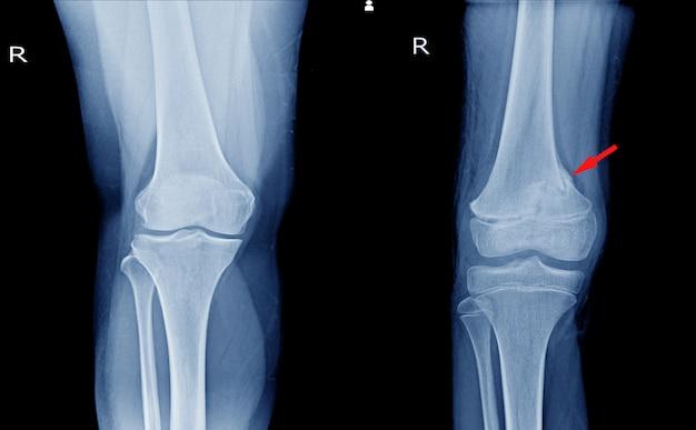 Vistas de joelho de raio-x (ap) mostrando articulação normal do joelho e fratura do fêmur distal no ponto da seta vermelha