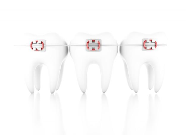 3d abbildung. zahn mit zahnspange. zahnpflegekonzept. getrennter weißer hintergrund.