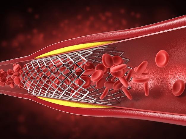 3d-rendering-ballon-angioplastie-verfahren mit stent in der vene