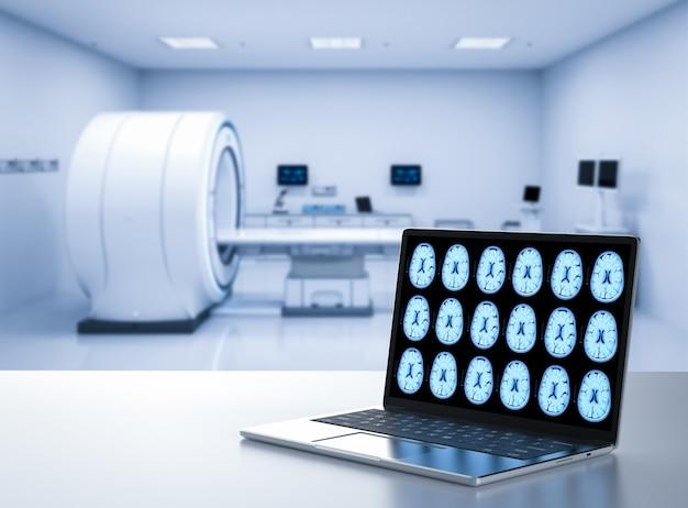 3d-rendering-computer-notebook-display-röntgen-gehirn im mrt-labor