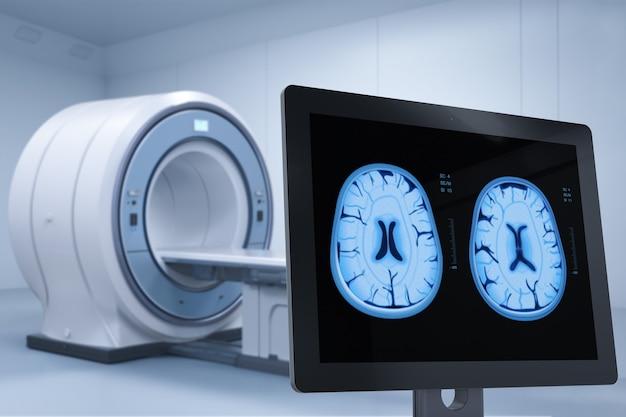3d-rendering-computermonitor-display-röntgen-gehirn im mrt-labor