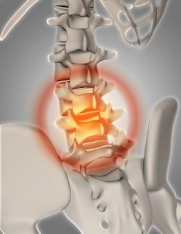 3d übertragen von einem skelett mit hervorgehobenen wirbelsäule schmerzen zeigen