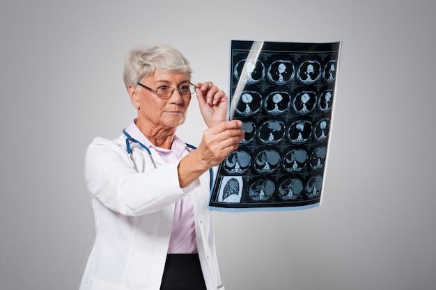 Ältere ärztin, die röntgenbild analysiert