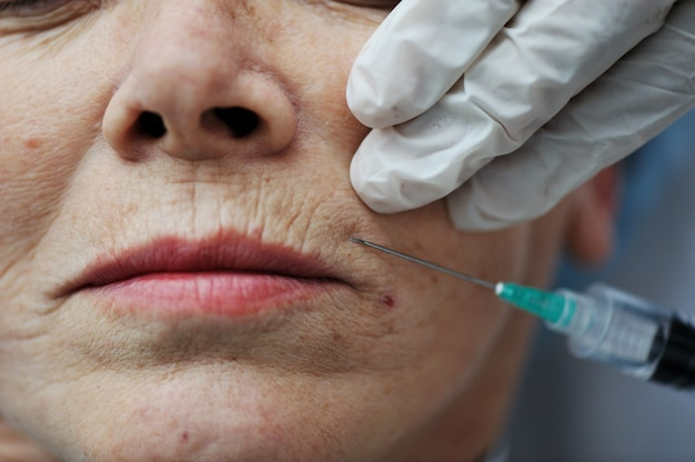 Ältere frau, die botox einspritzungverfahren erhält