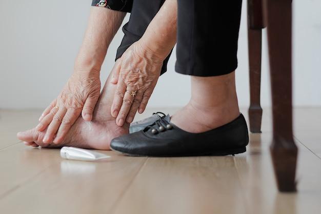 Ältere frau, die creme auf geschwollene füße setzt, bevor sie schuhe anzieht
