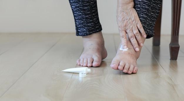 Ältere frau, die creme auf geschwollene füße setzt