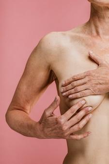 Ältere frau, die sich des brustkrebses bewusst ist