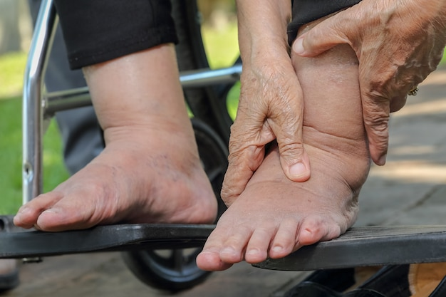 Ältere frau geschwollene füße drücken test auf rollstuhl