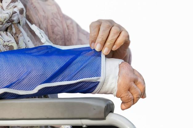 Ältere frau mit einem gebrochenen arm auf einem gipsverband