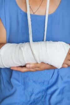 Ältere frau mit zurückgespultem arm in gips und verband. schlag, bruch, knochen, krankenhaus.