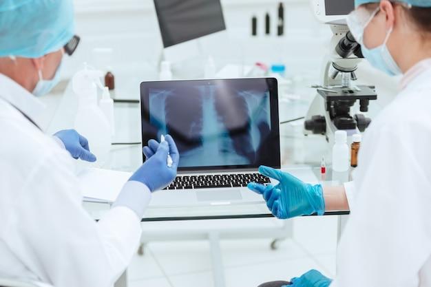 Ärzte diskutieren eine röntgenaufnahme der lunge