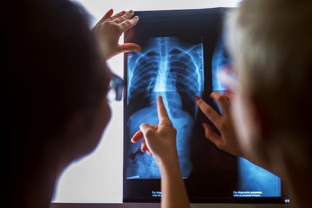 Ärzte überprüfen röntgen in einer arztpraxis.