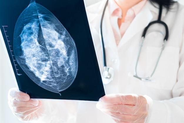 Ärztin, die mammographieergebnisse auf röntgen betrachtet