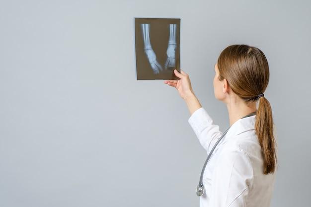 Ärztin, die röntgenbild der beine des neugeborenen untersucht