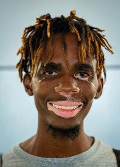 Afroamerikanischer schwarzer junger mann mit vitiligo-haut