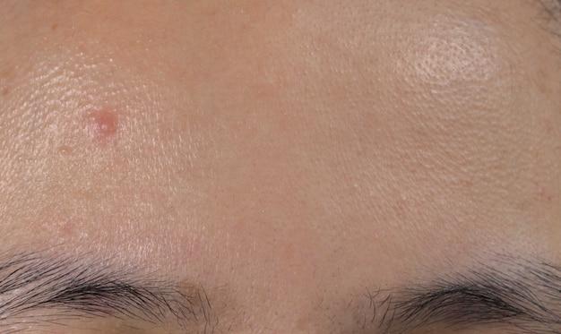 Akne auf der stirn der asiatischen frau der fettigen haut. komedonen schließen.