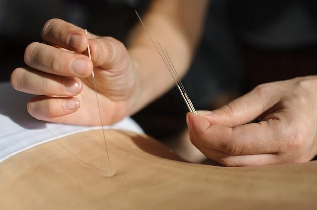 Akupunktur. chinesische medizin behandler